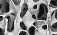 Improved Steel Copies Bone Microstructure