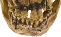 Tooth Study Takes Bite Out of Evolution